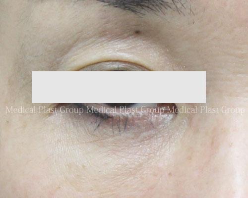 汗管腫-01-after-開瞼