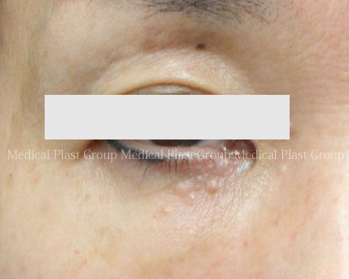 汗管腫-01-before-開瞼